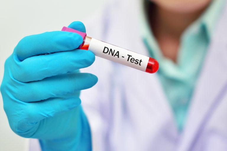 Uzyskanie materiału do badań DNA